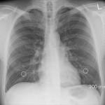 右胸がチクチク痛いときの7つの原因!内蔵の病気にも注意しよう!